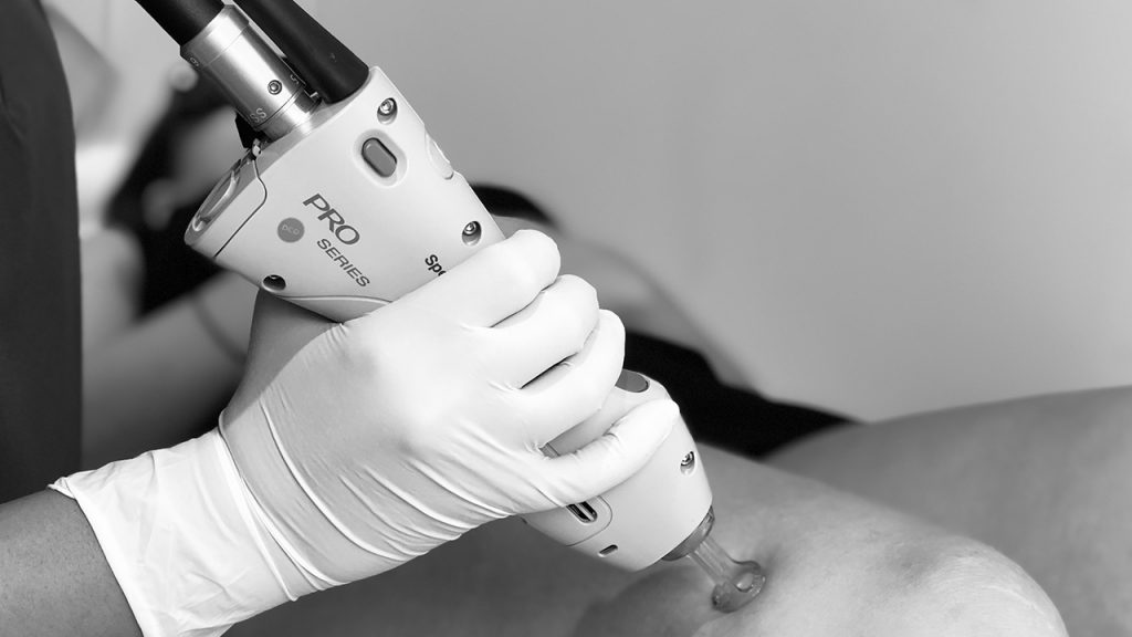 spider vein removal thumbnail