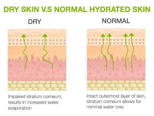 dry skin vs normal skin
