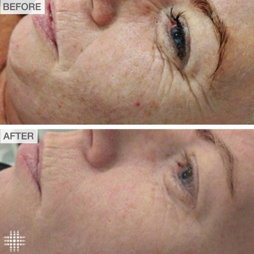 needling before and after