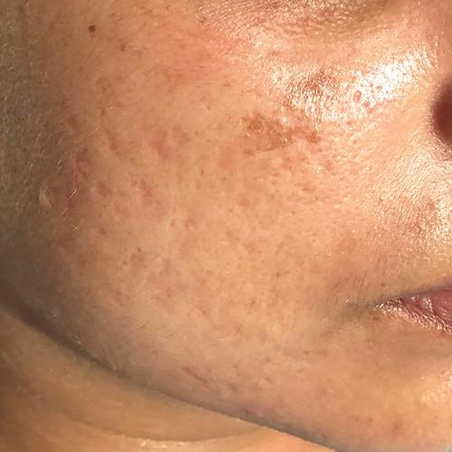 atrophic scar