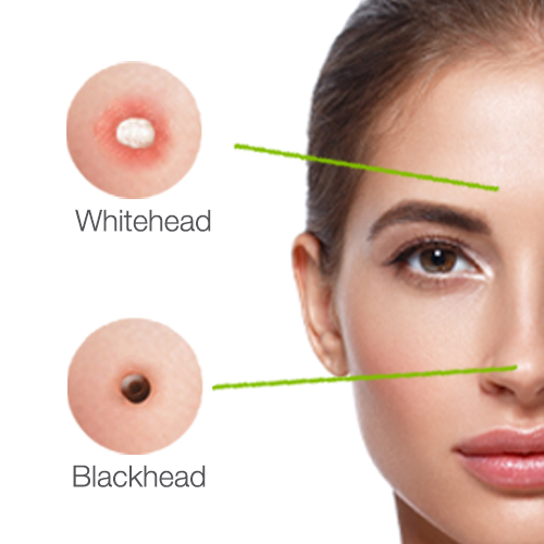 How to remove blackheads: DIY or skin treatments? | Results