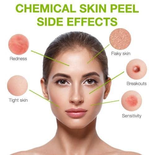 chemical skin peel side effects