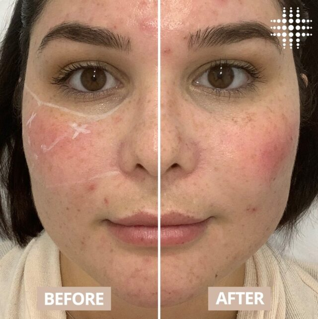 """Nurse Rayna from Brisbane CBD swapped seats last week and became the client as she had her cheeks filled!  """"I adore doing cheeks and yesterday I got mine redone.So for me I started to notice some slight flattening happening to my cheeks and my smile lines were started to deepen and become more noticeable especially when I wear makeup. This was more of an enhancement treatment for me and boy do I LOVE IT! For something so subtle to give such a wow effect really speaks wonders about this treatment."""""""