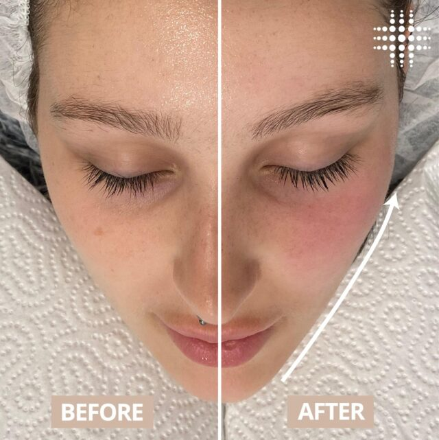 Tighten and lift! Our non-surgical facelift stimulates collagen and elastin production for the future, leaving you with tighter and lifted facial tissue for up to two weeks after every treatment. For best results, a treatment plan of 6-10 sessions is recommended as the facial muscles are stimulated over the treatment period! ✨@resultslaserclinic_nursebecca  Our experienced clinical Therapists are always available for a complimentary consultation. Book today to enjoy 50% off your next skin treatment! Book online today https://bookings.resultslaserclinic.io/ or call our team on 1300 722 432.