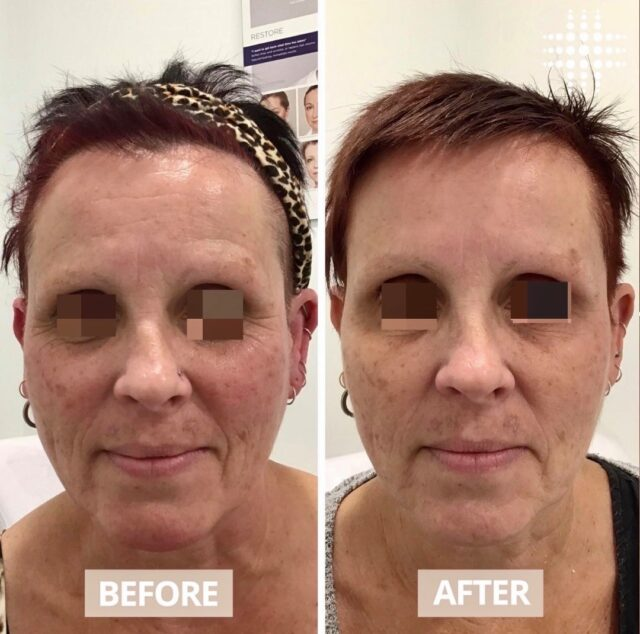 Beautiful result from first time anti wrinkle injections for this gorgeous lady! We treated her frown, forehead and the lines around her eyes. We've achieved an overall natural look that has softened the deeper, pre-existing lines in her upper face, even at rest. As you can imagine this beauty is ecstatic with her results! @resultslaserclinic_nurserosie from @westfieldkotara  Our experienced clinical therapists are always available for a complimentary consultation. Book online today.