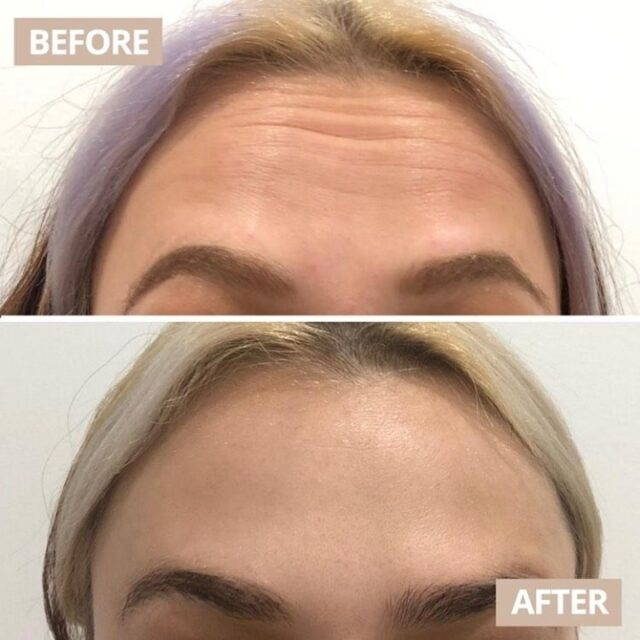 Anti wrinkle magic!  @resultslaserclinic_nurseamanda is back in clinic Wednesday and Thursday at @wollongongcentralofficial