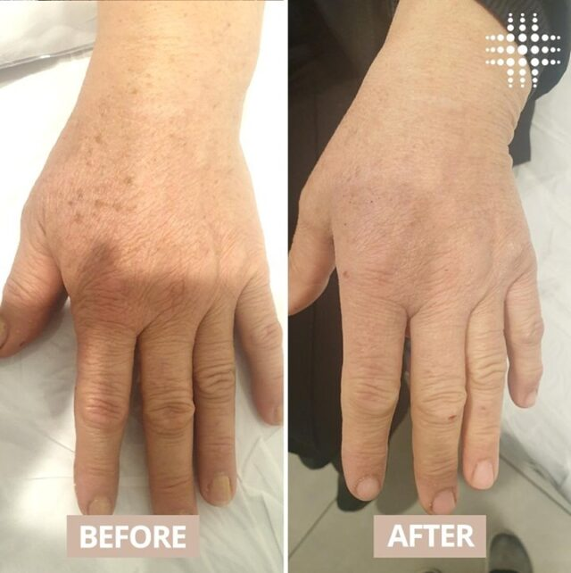 Pigmentation occurs as a result of over exposure to the suns damaging rays causing age spots and discoloured skin patches.  With a tailored treatment programme, our clinical therapists can help to reduce the effects of the sun damage, even out your skin out and leave you feeling  #resultsconfident.  Book your next appointment today and enjoy 50% off Laser and Skin treatments! 🎉🎉