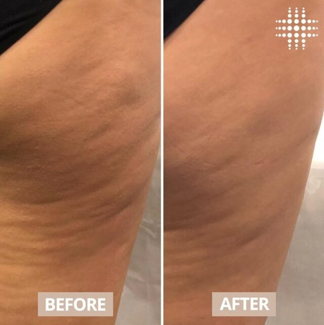 Our Cellulite Reduction treatment uses clinically proven innovative technology that targets and reduces the size of fatty cells in 3 easy steps.   Step 1: Generates heat to target fat cells and releases them by using radio frequency  Step 2: Metabolises and removes the release fat via lymphatic drainage  Step 3: Reshapes the skin by promoting immediate collagen contraction that stimulates collagen production  Visit our passionate team of clinical therapists who can educate and tailor a treatment program that focuses on you skin priorities leaving you #resultsconfident Results after 3 treatments Book online https://bookings.resultslaserclinic.io/