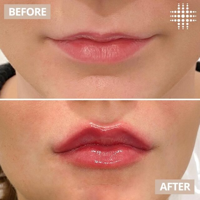 Look at this fantastic lip transformation! Work by Cosmetic @resultslaserclinic_nursejulie in @WestfieldEastgardens.  Are you interested in enhancing your lips?​ Our highly experienced Cosmetic Nurses are available for complimentary consultations  Save time, book online! Link in bio ^^^^^^