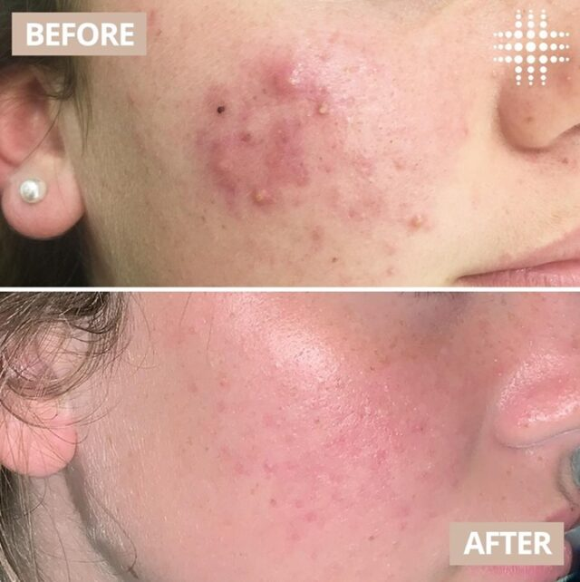 Do you suffer from acne and are not sure how to treat it? Why not try our Acne Peel?   How does it work?  Our Acne Peel is uniquely formulated to rapidly bring acne under control by working both in and on the skin to kill bacteria that causes  breakouts, reducing the risk of future breakouts.  If you are ready to transform your skin confidence with our Acne Peel, our skin essentials Package is currently on sale for $199.  It includes: ❇️ x2 Micro Cleanse ❇️ x2 Chemical Peels ❇️x2 LED Light Therapy  Client #realresults after 6 weeks of treatment  Save time, book online - link in bio