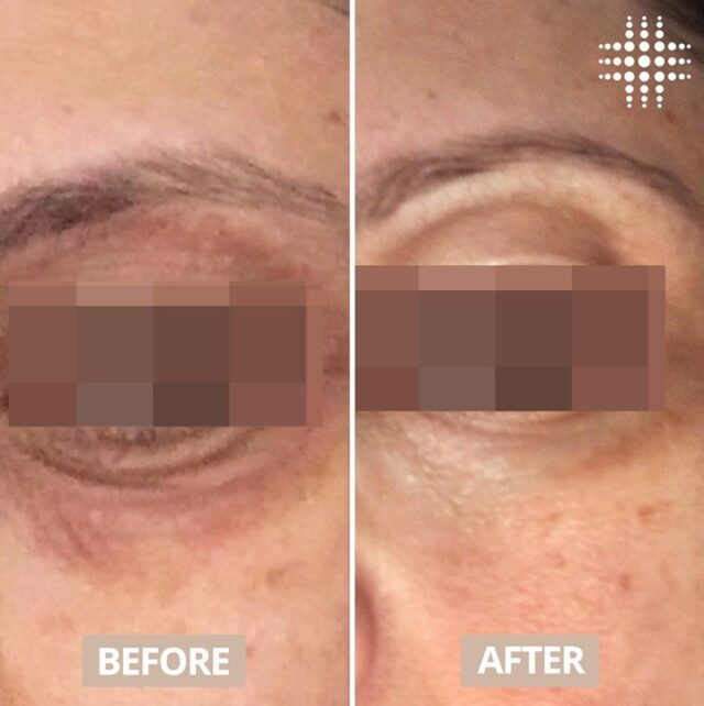 #realresults from our Non Surgical Eyelift treatment.  How does this treatment work?  ✅ Simultaneously heats the skin from within stimulating collagen + elastin reproduction ✅ The heat produced encourages new collagen to form between the creases and lines formed in the skin  Are you interested in learning more about this treatment? Our highly experienced team are always available for a complimentary consultation.   Save time, book online link in bio
