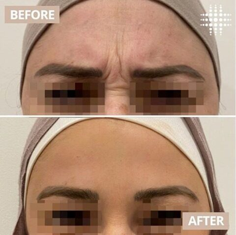 We did some smoothing out on the frown and forehead the other week ... I think these results speak for them self 😍👏. When our frown area is left untreated, it can often lead to the formation of deep static lines which contribute to a look of sadness or anger. Thankfully, this can be taken care of in a matter of half an hour with prices starting from $158 @resultslaserclinic_nursebridie.  Are you interested in anti wrinkle injections?​ Our highly experienced Cosmetic Nurses are always available for a complimentary, Cosmetic consultation.   Book online and save on skin today https://bookings.resultslaserclinic.io/