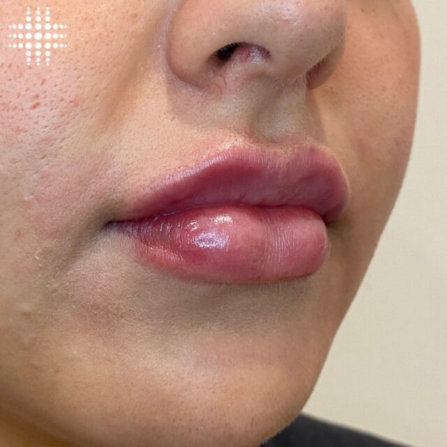 Pucker up 💋😍 @resultslaserclinic_nursebridie giving her clients a plump pout at @stocklandmerrylands  Save time, book online - link in bio