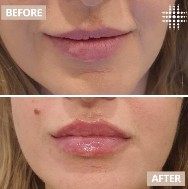 """Witnessing client's reaction when they see their lips in the mirror after the treatment is simply priceless and rewarding. Happy and satisfied indeed."" 🎉 Visit @resultslaserclinic_nursereina for all your injectable needs.  Save time, book online - link in bio"