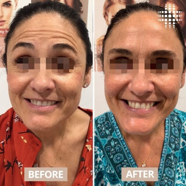 Raise your eyebrows if you're due for a top of anti-wrinkle! 🙌 Incredible results delivered by @resultslaserclinic_nursesarah at westfieldwarringahmall