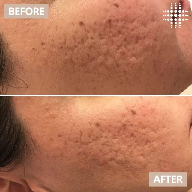 The power of Skin Needling 😍   Do you want to treat your acne scarring or uneven texture? With a customised Skin Needling treatment plan from our team, you too can start your journey to achieving #realresults like these!  Pair this treatment with LED Light Therapy to accelerate  your results - Skin Needling + LED Light Combo on sale for $195!  Save time, book online - link in bio