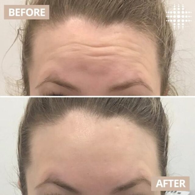 @resultslaserclinic_nurserhi softening her clients forehead lines with Anti Wrinkle Injections 💉  Are you interested in seeing these results on your skin? Our highly experienced team are always available for a complimentary consultation. ​​  Save time, book online - link in bio