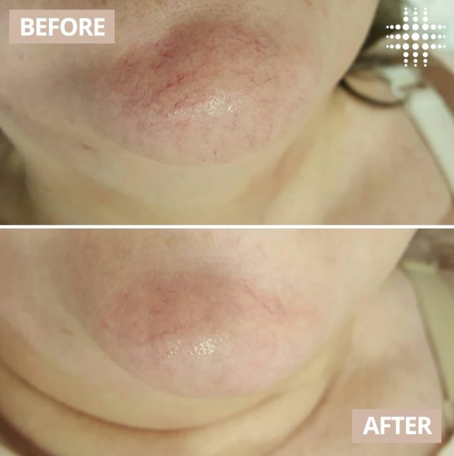 #realresults after Capillary treatment from our team in @wollongongcentralofficial.  Our non-invasive, safe treatment will minimise the appearance of unwanted broken capillaries or visible spider veins leaving you with a clearer complexion. Are you interested in learning more about our Capillary treatments?​ Our highly experienced team are always available for a complimentary consultation. ​​   Save time, shop online - link in bio