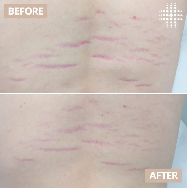 Loving these #realresults after 1 x Stretch Mark Removal treatment.  Our Stretch Mark Removal treatment is a fast, safe and non-invasive treatment that provides natural and gradual improvements over time.  Save time, shop online - link in bio