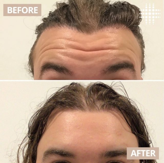 @resultslaserclinic_nurseivy from Wintergarden Brisbane shows us how to get rid of wrinkles! Book a appointment for your anti-wrinkle injections today!! 😍