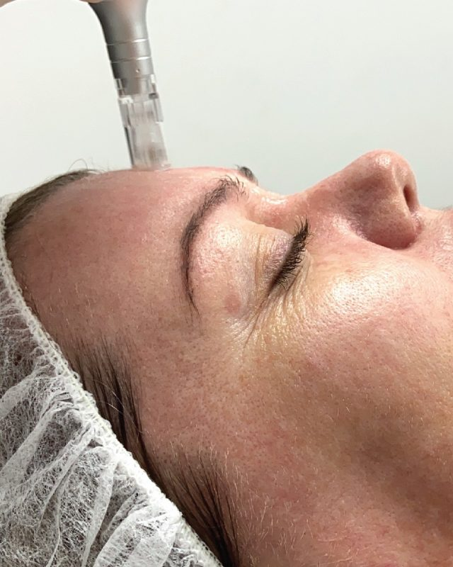 Resurface and renew your skin with our Rextexturing Needling Package $199  1 x Skin Needling 1 x LED Light Therapy 1 x Active Moisturiser  Book your complementary consulation today to start your #skinvestment journey