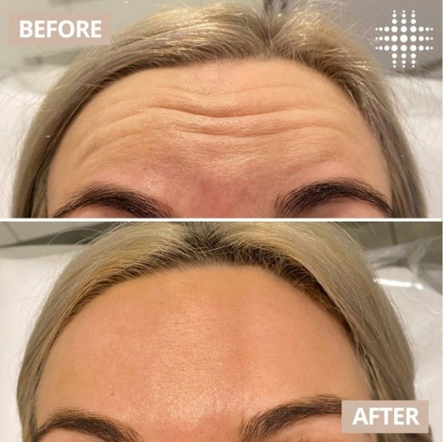 """2 weeks after antiwrinkle injections and the results are this good!""  💉 @resultslaserclinic_nurseleanne"