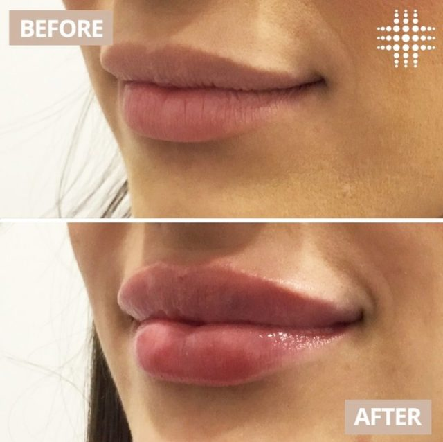 Another beautiful lip filler treatment done by me, I just love my job ! 💉❤️💉💉❤️💉  @resultslaserclinic_nursemonica