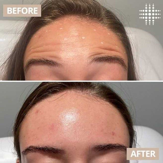 Smooth, shiny foreheads are a thang ❤️ @resultslaserclinic_nursebridie