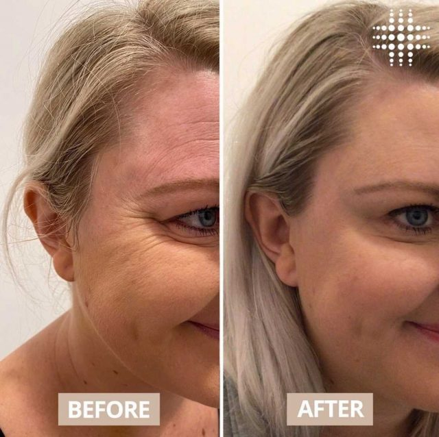 A little bit of Anti Wrinkle to eliminate those pesky lines, but keep your beautiful smile 🤩🥰 @resultslaserclinic_nurseivy  #resultslaserclinic  #sydney #australia #brisbane #melbourne #canberra #perth #sydneycbd #victoria #newsouthwales #queensland #perth   #beauty  #clinic  #therapist  #beautytherapist  #treatments #finelines #wrinkles #ageingskin #antiwrinkle #foreheadlines #frownlines #lipflip #bunnylines #necklines #crowsfeet #expressionlines #cosmeticnurse #ageing