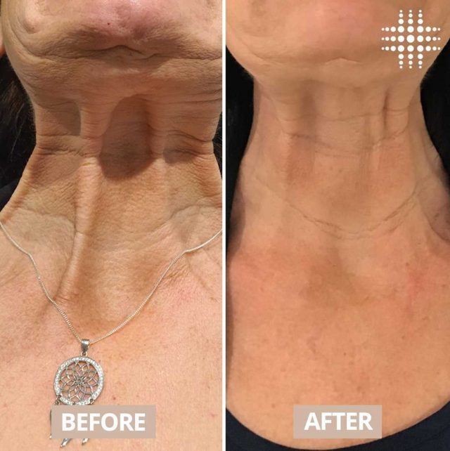 """""""YES! 🙌 Neurotoxins can also be used to rejuvenate the neck ✨🌻  Those vertical lines a.k.a plastysmal bands can actually pull the skin downwards which contributes to jowling and laxity. Relaxing those bands not only smoothens the neck but can define your jawline. Client's chin was also treated with nerotoxin"""" Amazing work by @resultslaserclinic_nursereina  #finelines #wrinkles #ageingskin #antiwrinkle #foreheadlines #frownlines #lipflip #bunnylines #necklines #crowsfeet #expressionlines #refresh #ageing #cosmeticnurse  #resultslaserclinic  #sydney #australia #brisbane #melbourne #canberra #perth #sydneycbd #victoria #newsouthwales #queensland #perth   #beauty  #clinic  #therapist  #beautytherapist"""