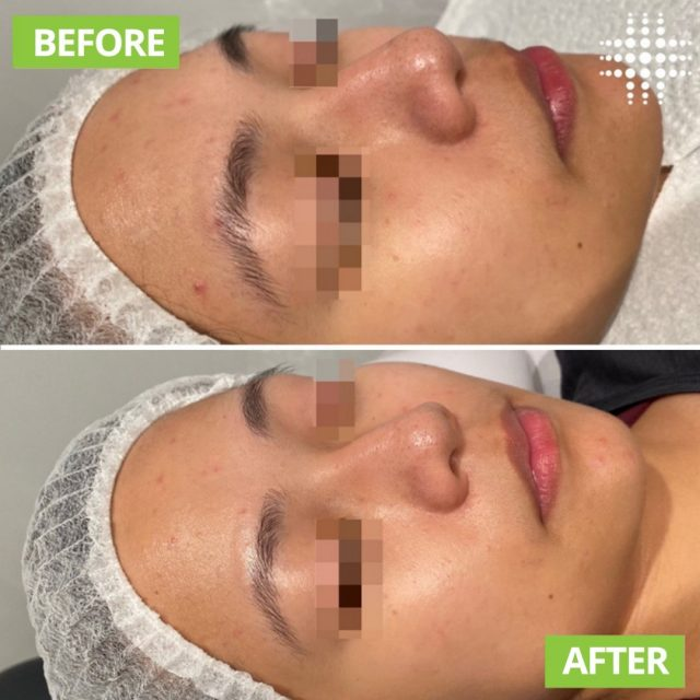 """""""Results for my client after her first acne peel ... first photo taken a week before peel, second photo today. Looking so much lighter, brighter, tighter, shinier and with a few less spots/congestion after just one treatment - I'm so excited to see this skin TRANSFORM in the following weeks 😍✨ CHEMICAL 👏 PEELS 👏✨"""".  @resultslaserclinic_nursebridie"""