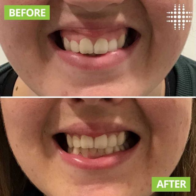 """Did you know that anti-wrinkle treatments, aren't just for wrinkles?! Anti wrinkle treatments help to relax the muscles in our face.   A perfect example is displayed here ☺️ This lovely client came in to have her """"gummy smile"""" treated. The results simply speak for themselves. Now that is something to smile about!"""""""" @resultslaserclinic_nursejess_d"""