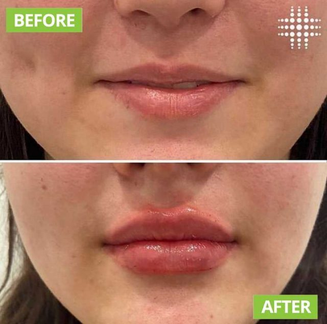 This client is going into the the new week with fuller, more hydrated lips @resultslaserclinic_nursetoni