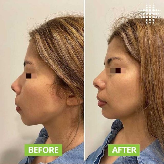 Side profile enhancing 😍✨ High density dermal filler used in the chin area for projection and definition @resultslaserclinic_nursebridie