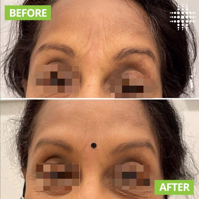 Amazing results with Anti-wrinkle to my clients frowns 😍. This is her at rest no muscle use!!!Softening and minimising the appearance of fine lines. Her main concerns were that her frown lines were getting more noticeable. Via @resultslaserclinic_nursejane  #resultslaserclinic #sydney #australia #brisbane #melbourne #canberra #perth #sydneycbd #victoria #newsouthwales #queensland #perth   #beauty  #clinic  #therapist  #beautytherapist  #treatments