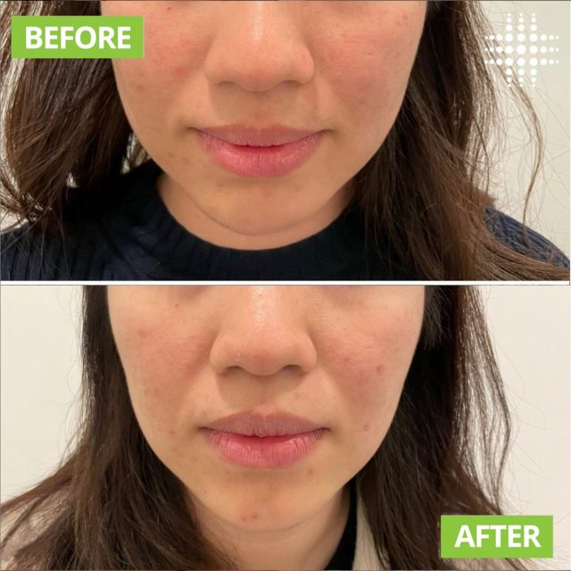 Jaw slimming treatment ✨ The goal of jawline slimming is to reduce a prominent facial muscle for a aesthetic softer, feminine appearance by weakening the masseters muscles. It can also help to treat bruxism to relieve symptoms of headaches from clenching & teeth grinding. Via  @resultslaserclinic_nursejane  #resultslaserclinic #sydney #australia #brisbane #melbourne #canberra #perth #sydneycbd #victoria #newsouthwales #queensland #perth   #beauty  #clinic  #therapist  #beautytherapist  #treatments