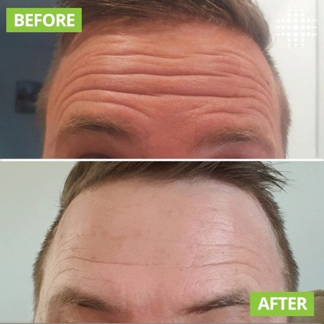 Raised and relaxed before and afters. What a huge difference for this client whilst still maintaining some natural movement, creating a refreshed look. @resultslaserclinic_nurseparis   #resultslaserclinic #sydney #australia #brisbane #melbourne #canberra #perth #sydneycbd #victoria #newsouthwales #queensland #perth   #beauty  #clinic  #therapist  #beautytherapist  #treatments