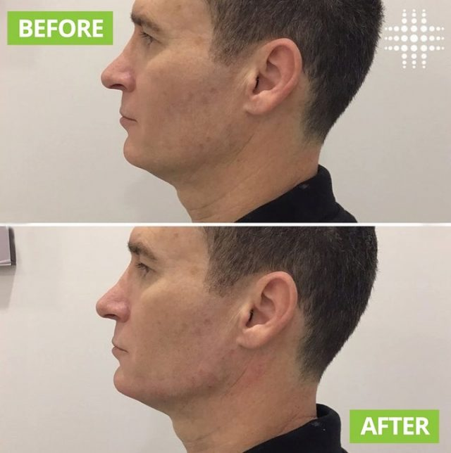 Aesthetic treatments are not limited to women.🙋♂️ ⠀ Jaw and chin fillers has gained a lot of popularity recently as more men seeking an angular chiseled jawlines to achieve a signature masculine features to boost their confidence🌟👑.  #fillers #jawfiller #chinfiller #malejawfiller #jawfillerformen #malefillers #nonsurgical #antiaging #injectables #nurseinjector #westfield #sydneyinjectors #beforeandafter #realresults
