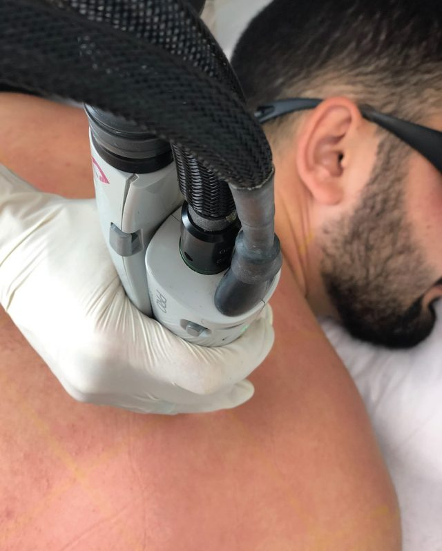 Get back to those results with the Upper Body Package for $229- Book your next visit today!  #resultslaserclinic #sydney #australia #brisbane #melbourne #canberra #perth #sydneycbd #victoria #newsouthwales #queensland #perth   #beauty  #clinic  #therapist  #beautytherapist  #treatments