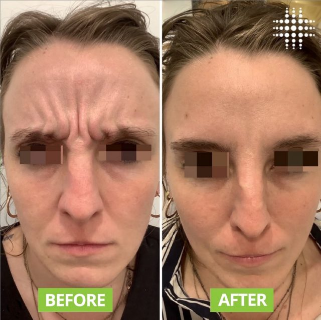 Look at these amazing results for frown lines 😍🥰...If you are thinking about getting antiwrinkle do it so worth it 😇 @resultslaserclinic_nurserue #cosmeticinjectables #cosmeticnurse #injectables #antiwrinkleinjectables #frownlines #injectorbrisbane #wrinklefree #brisbanecosmeticinjector #northlakes #cosmeticinjectorrue